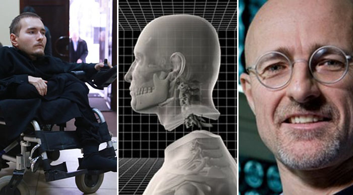 First Human Head Transplant Date Officially Set For 2017